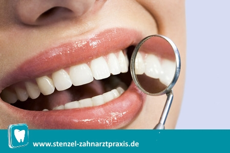 Strahlend weiße Zähne, Bleaching, Zahnaufhellung, Whitening